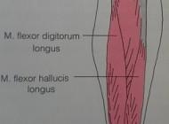 Wat is Shin Splint en hoe behandel je dit
